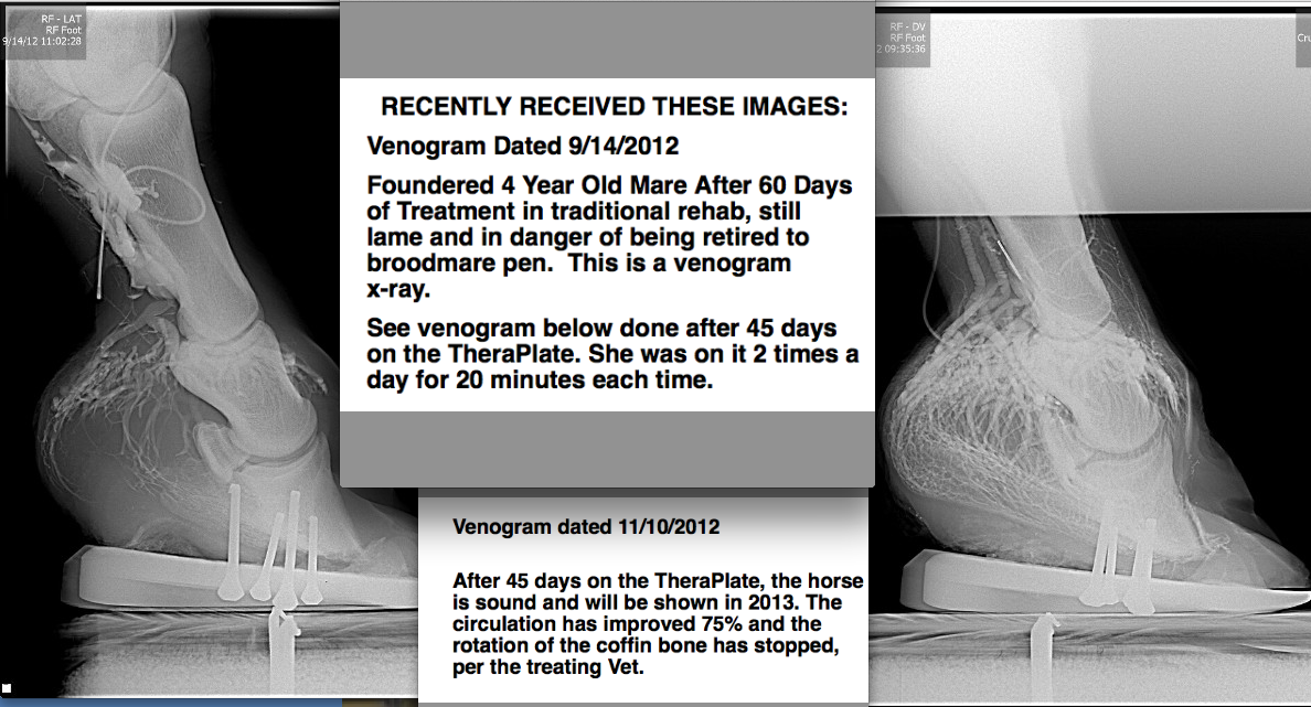 THIS is the photo series that got me.  A Venogram.  Tess' venogram was worse than this - and she was declared unfixable.  Yet, here was proof that the vessels did regenerate and bloodflow could come back!