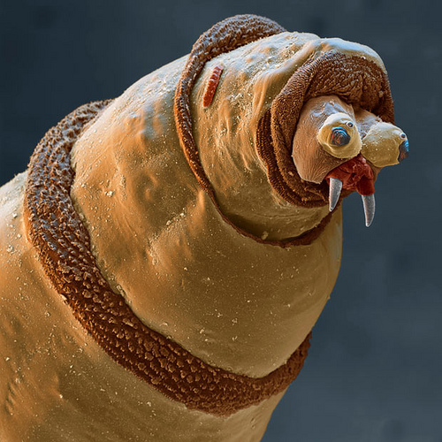 Go Maggots, Go!  This is a real maggot - A microscopic view of a sterile bottle fly maggot of the type used in biotherapy for distal limb infections in horses. (Flickr.com image shared from Ackbar91)