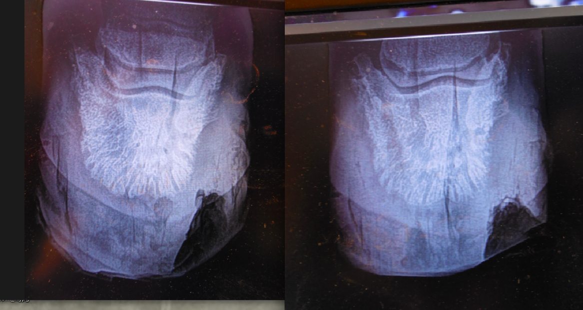 Comp Xrays.  On the left side is her right foot 3 weeks ago.   The right side is today.  Luckily, there is no bone deterioration or infection plume.