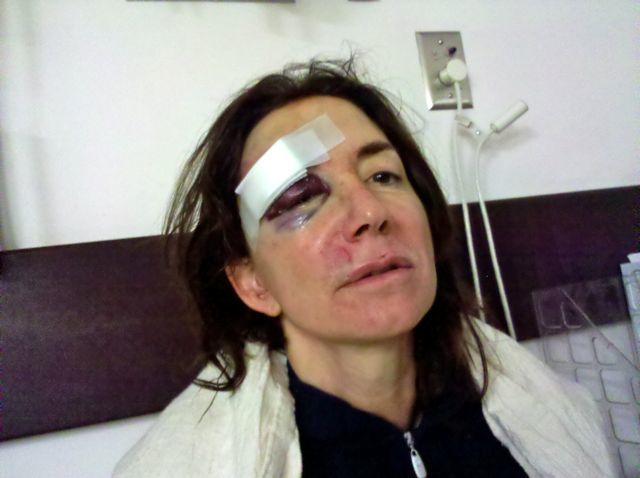 My accident... this is what I had a surgeon make better.